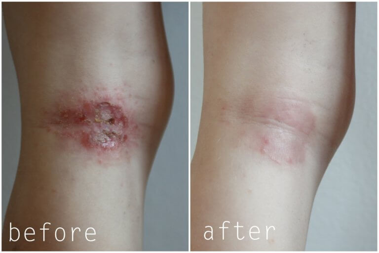 eczema legs before and after